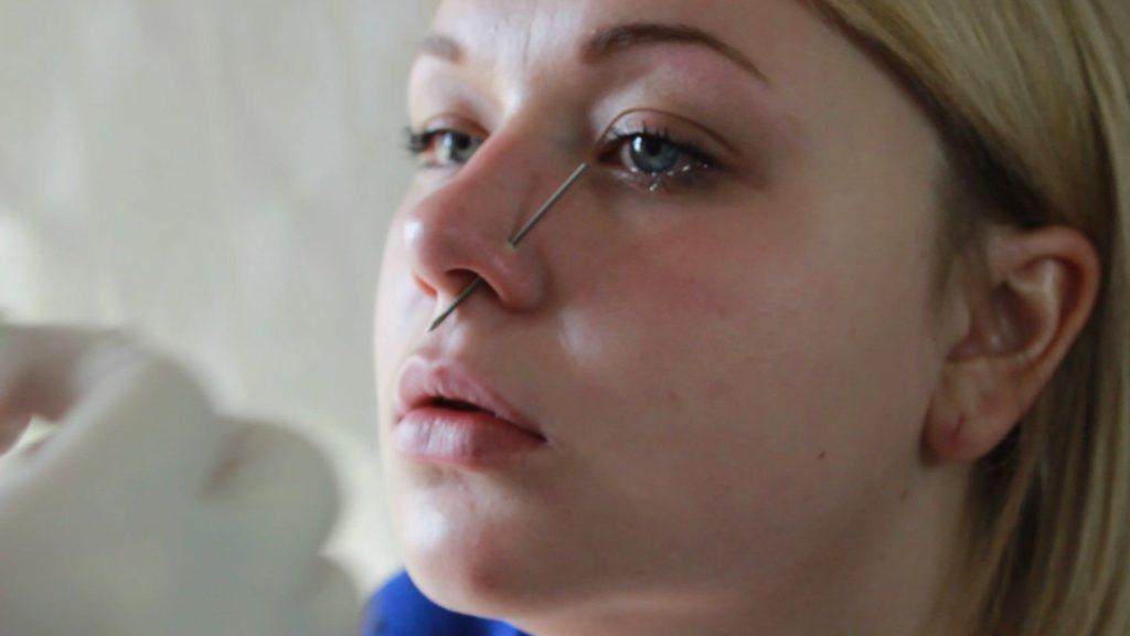 Прокол крыла носа