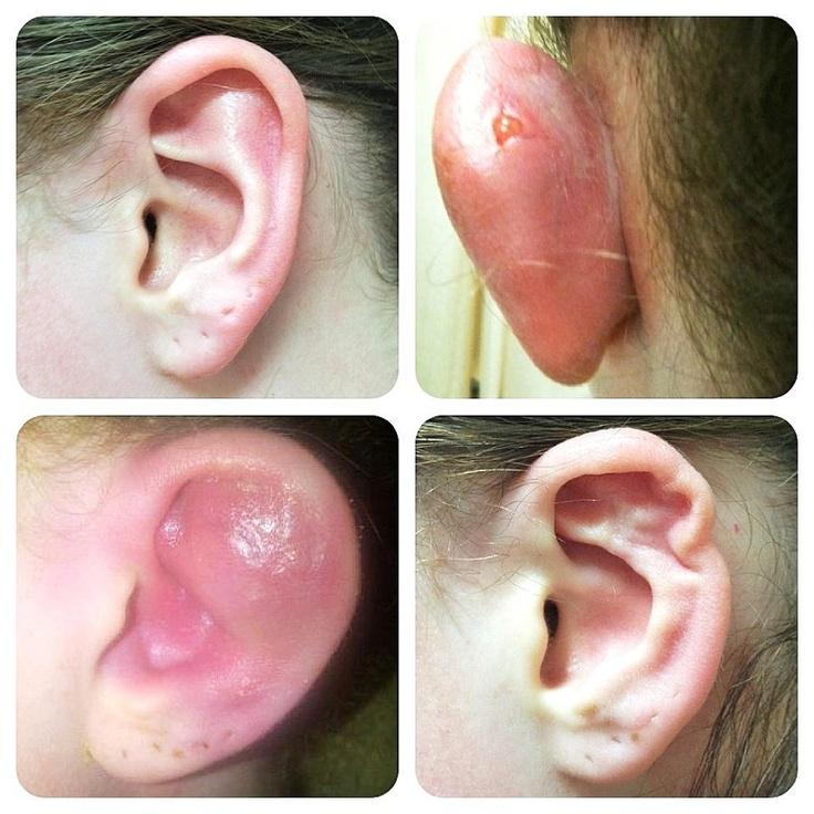 опухоль уха